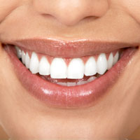 tooth-whitening